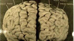 Einsteins Gehirn war nicht kugelförmig und sehr ungewöhnlich