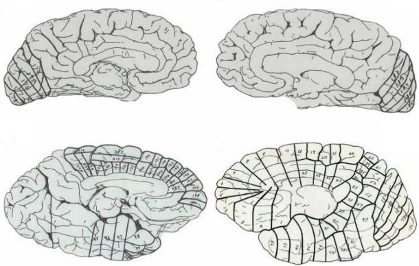 """Bildergalerie: """"Schon sehr ungewöhnlich"""": Einsteins Gehirn - Bild 4 ..."""