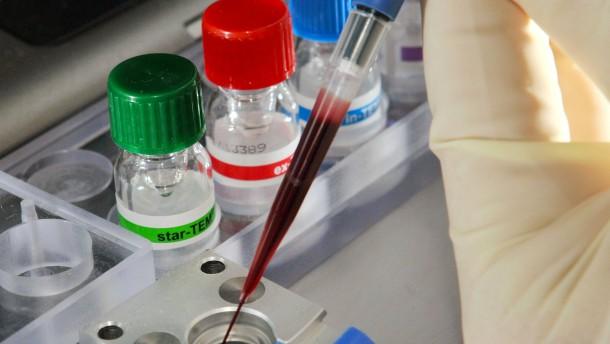 Fatale Attacken des Immunsystems