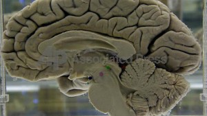 Keine Lizenzen fürs Gehirn