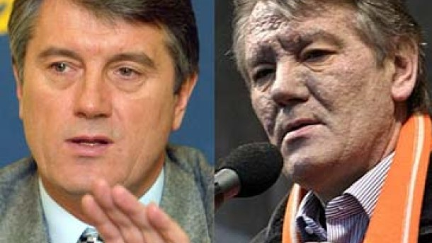 Ärzte: Juschtschenko wurde vergiftet