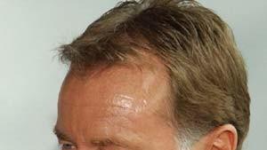 ZDF-Sportchef Poschmann rückt in die zweite Reihe